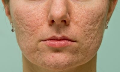 acne-with-scars